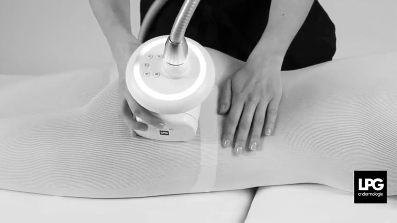 Vidéo vignette smooth cellulite - LPG endermologie